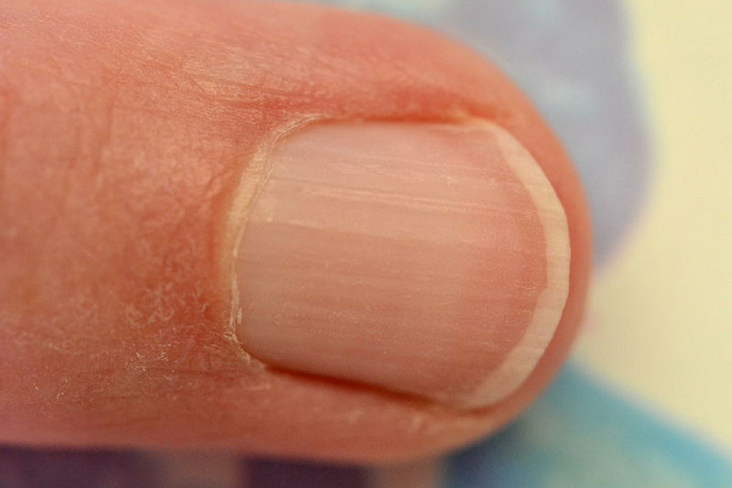 How to Strengthen Brittle & Splitting Nails Naturally with Vitamin E ...